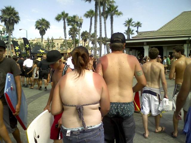bad tan lines photos
